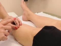 Você sabia que a acupuntura pode ser um dos tratamentos aliados no combate ao câncer?