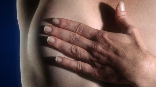 câncer de mama - Foto: Agência Brasil