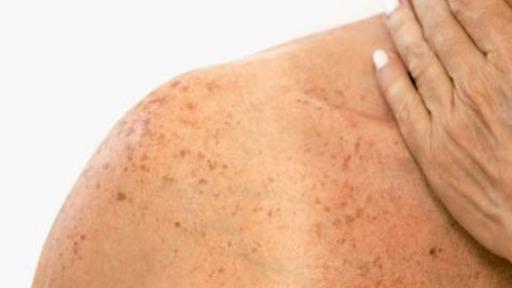 Mesmo no inverno, com baixos índices de raios ultravioletas, os cuidados da pele contra o câncer devem continuar